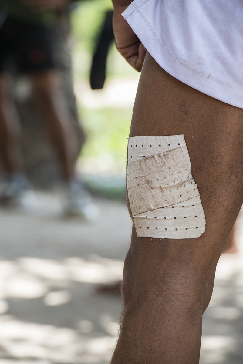 This boxer have an plaster on his leg to help him while training from the injury he received.